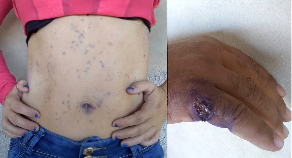 The torso of a woman and the hand of a man suffering from scabies.